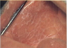 Classic lacy appearance of Lichen Planus